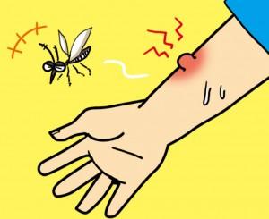 蚊に刺される